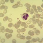 Foto da extensão sanguínea 1